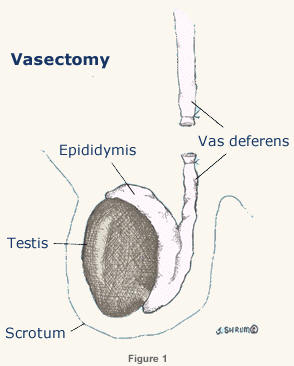 Vasectomy Reversal - Northern California Fertility Medical ...